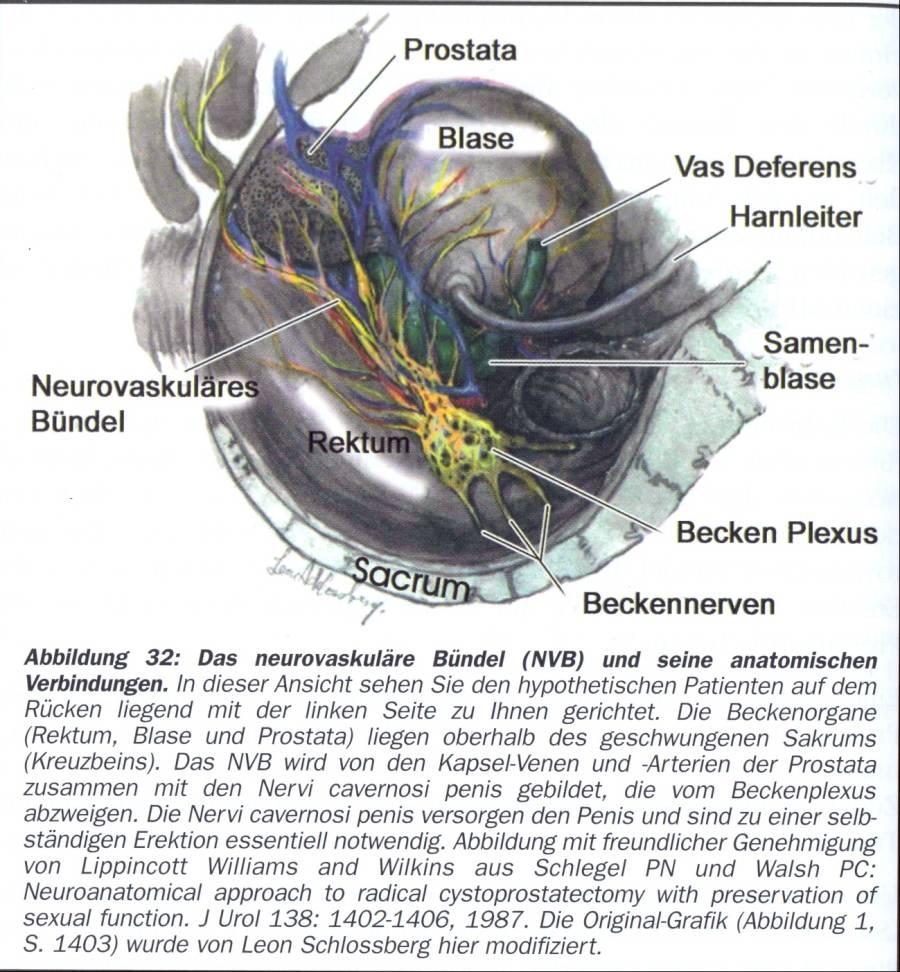 Gemütlich Prostatakrebs Anatomie Ideen - Menschliche Anatomie Bilder ...